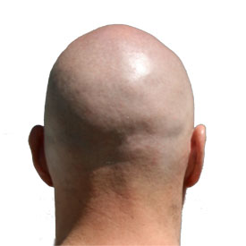 Bald Can Be Beautiful Too